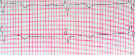Heart rate on paper for recording an electrocardiogram, prevention of heart diseases