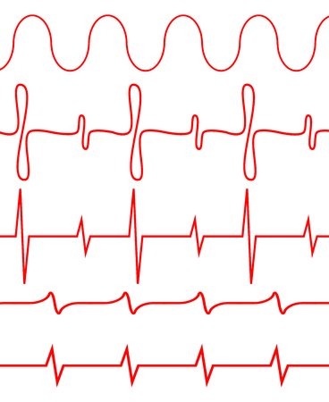pulsating: Seamless set of lines heartbeat. Pulse electrocardiogram, amplitude health, diagnosis illness. Vector art design abstract unusual fashion illustration