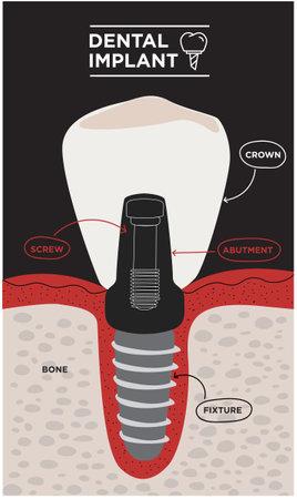 Dental implant structure. Medical educative infographic. Dental Implant Information vector illustration Vector Illustratie