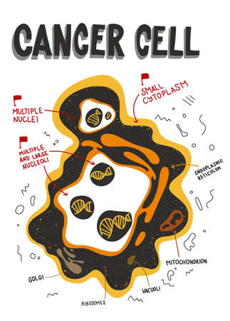 Cancer cells structure. Labeled Cancer cell anatomy. characteristic of cancer. doodle, flat medical illustration.