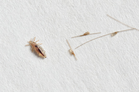 Louse and nits cocoons on white paper background.