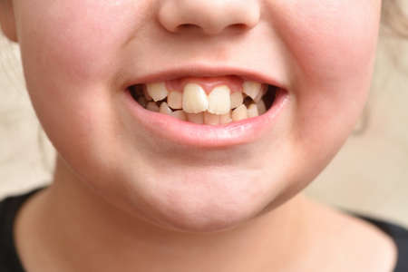 Crooked teeth in a child girl, close up