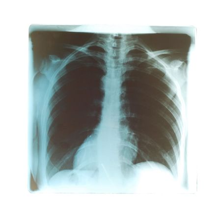 lungs radiogram photo