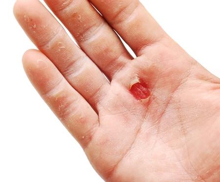 wound  Standard-Bild