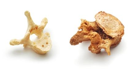 vertebra:  human vertebra