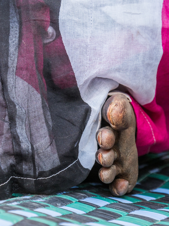 Destroyed foot of an African woman in the colorful boubou. Senegal. Africa. Stock Photo