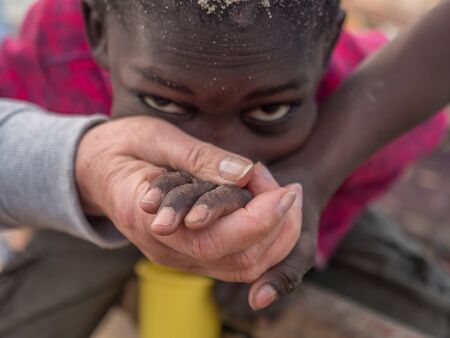 Senegal, Africa - January, 24, 2019: Black and white hands and eyes of boy. Senegal. Africa. Diversity concept.
