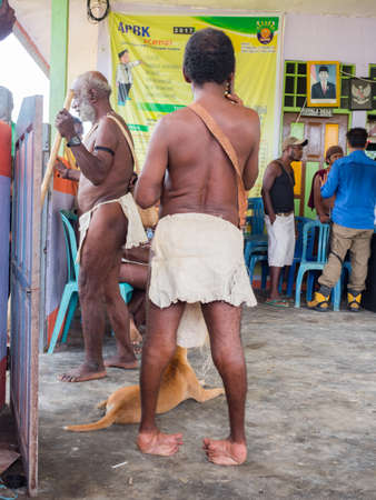 Bird's Head Peninsula, West Papua, Indonesia, Asia - Feb 2018: A person with leg deformities due to polio or other diseases in the middle of the Indonesian jungle Bird's Head Peninsula, West Papua, Indonesia, Asia. The problem of non-vaccination.