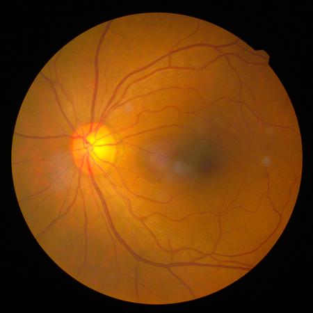 retinal