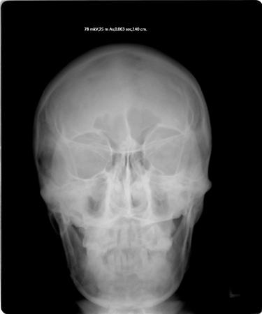 skull tomography