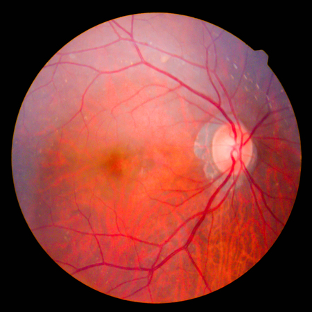 retinal Stock Photo - 76536050