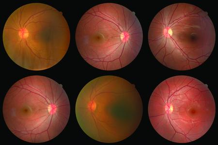 kolekcja obrazu siatkówki pacjenta wykonanego za pomocą aparatu fotograficznego siatkówki.