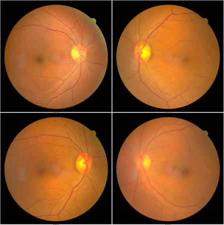 망막 사진 기계로 찍은 환자의 망막 이미지 수집.