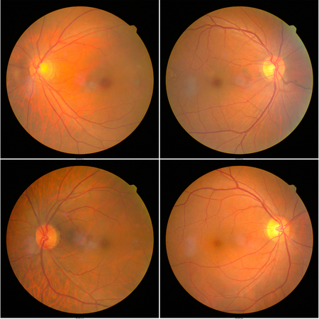 collection of Retinal image  of the patient taken with retinal photography machine. 版權商用圖片 - 122487212