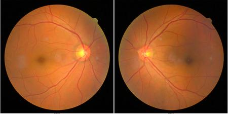 colección de imagen de la retina del paciente tomada con una máquina de fotografía de la retina.