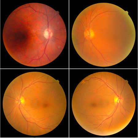 collection of Retinal image  of the patient taken with retinal photography machine. 版權商用圖片 - 122487222
