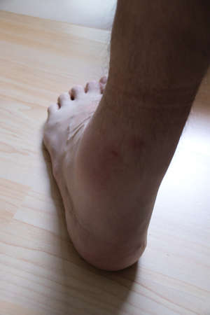 left ankle of a man is badly swollen after being ask by a wasp Фото со стока