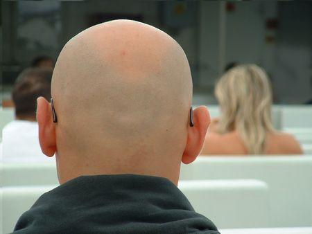 Bald vs Hairy