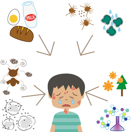 aldehyde: Allergy factor and boys Illustration