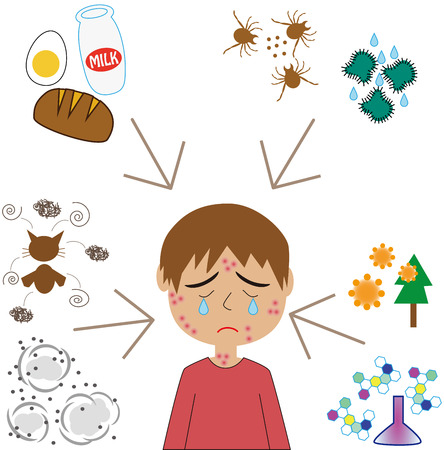pimples: Allergy factor and boys Illustration