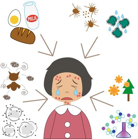 Allergische factoren en klein meisje Vector Illustratie