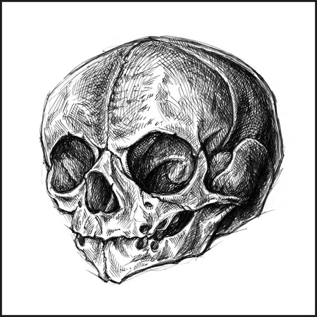 cross hatching: Fetus Skull