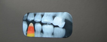 Candy corn in dental xray. 版權商用圖片