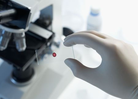 Scientist placing blood sample under microscope in laboratory selective focus