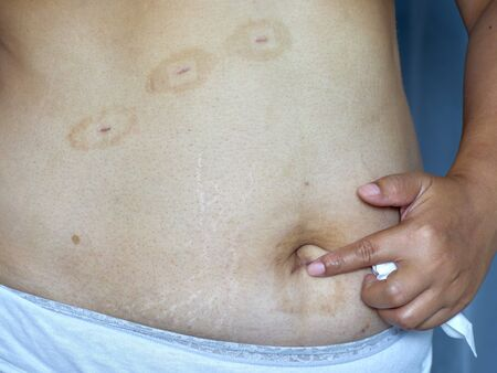 Scars on the skin of the abdomen of women after laparoscopic surgery. Medical technology