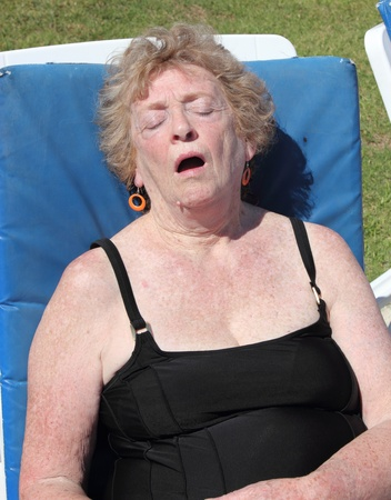 A retired english lady asleep on a sunbed getting burnt photo
