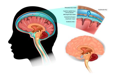 Diagramma che illustra il liquido cerebrospinale (CSF) nel sistema nervoso centrale del cervello. Struttura del cervello.