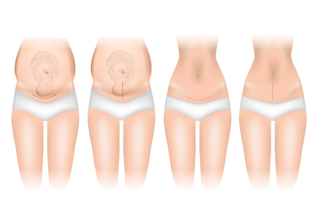 Types of incisions in cesarean delivery. Sutures after cesarean section. Vector illustration.