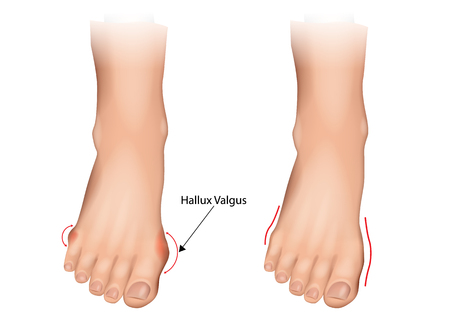 Illustration of the normal foot and hallux valgus. Human foot deformity. Hallux valgus and tailors bunion.