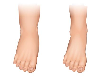 Illustration vectorielle de l'œdème sur les pieds. Gonflement des pieds et des chevilles.