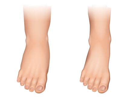 Vector illustration of edema on feet. Swelling of the feet and ankles. Иллюстрация