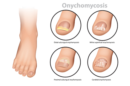 Fungal Nail Infection. Onychomycosis or tinea unguium. Four classic types of onychomycosis Stockfoto - 103086136