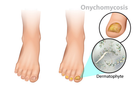 Onychomycosis or tinea unguium. Fungal nail infection. Dermatophyte