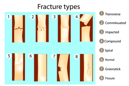 Fracture types of bones. Vector illustration.