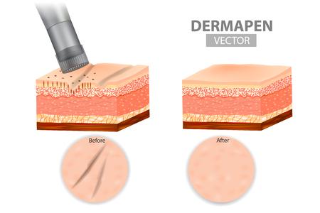 DERMAPEN. Dispositif d'estampage à micro-aiguille. Peau avant et après application Traitement d'induction au collagène. Illustration vectorielle