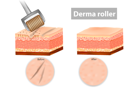 Derma roller or Meso-roller. Skin before and after application Roller for mesotherapy. Vector illustration Ilustracja