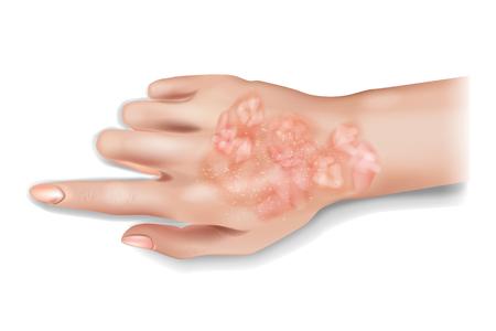 Psoriasis on human hand. Vector illustration