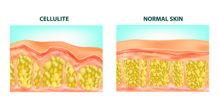 Illustrazione di una sezione trasversale della pelle della formazione di cellulite. Diagramma vettoriale.