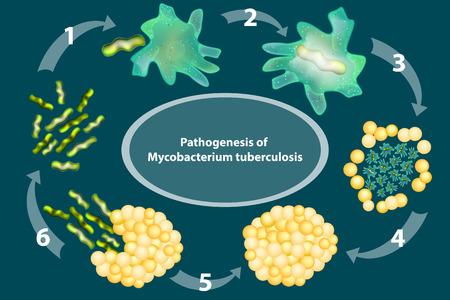 Pathogenesis of Mycobacterium tuberculosis. Tuberculosis. Vector illustration