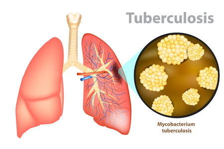Tuberculosis is an infectious disease caused by the bacterium Mycobacterium tuberculosis. Illustration