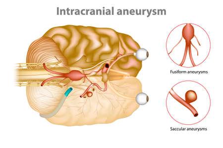 Intrakranielles Aneurysma oder Gehirnaneurysma. Vektorgrafik