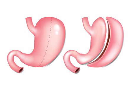 Laparoscopic Gastrectomy Gastric Sleeve (also known as the Greater Curve Gastrectomy, Vertical Gastrectomy) 矢量图像