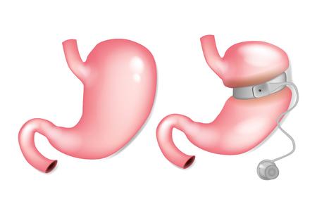 Opaska żołądkowa przed i po. Chirurgia opaski żołądka Ilustracje wektorowe