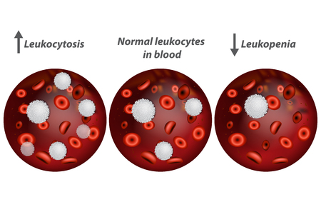 Leukocytosis and Leukopenia. White blood cell count. Illustration