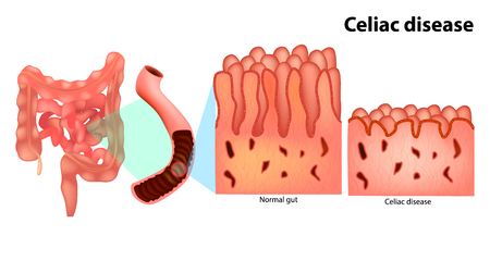 Coeliac disease or celiac disease (gluten-sensitive enteropathy), sometimes called sprue or coeliac. Иллюстрация