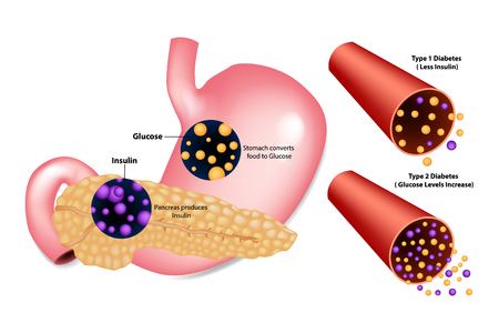 Diabetes Type 1 (Less Insulin) and Type 2 (Glucose Levels Increase). Stomach converts food to Glucose. Pancreas produces Insulin. Illustration